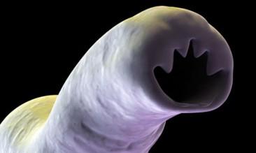 Ankilostomidozė
