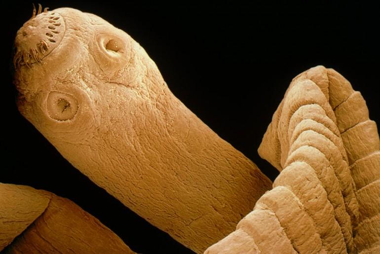 Cisticerkozė