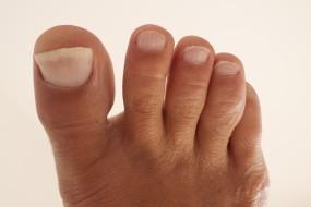 Grybelinės odos ligos